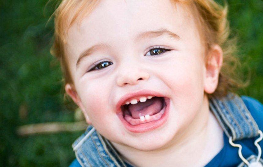 Erupción dental infantil